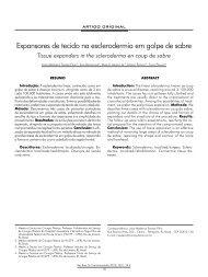 Expansores de tecido na esclerodermia em golpe de sabre - ABCCMF