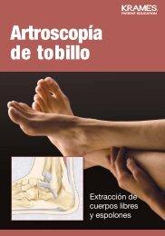 Artroscopia de tobillo - PDF Se abre una ventana nueva. - Veterans ...