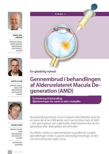 generation (AMD) - Øjenforeningen Værn om Synet