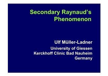 Secondary Raynaud's