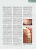 Lithiumdisilikat, die unbemerkte Revolution in der Vollkeramik ZMK - Seite 2