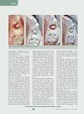 Lithiumdisilikat, die unbemerkte Revolution in der Vollkeramik ZMK - Seite 3