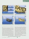 Lithiumdisilikat, die unbemerkte Revolution in der Vollkeramik ZMK - Seite 4