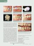 Lithiumdisilikat, die unbemerkte Revolution in der Vollkeramik ZMK - Seite 5