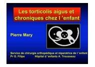 Torticolis de l'enfant - ClubOrtho.fr