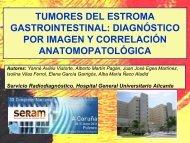 TUMORES DEL ESTROMA GASTROINTESTINAL: DIAGNÓSTICO ...