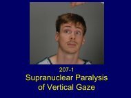 Supranuclear Paralysis of Vertical Gaze