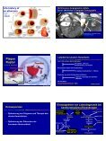 Schematischer Zeitablauf der Koronaren Herzkrankheit Initiation der ... - Page 2