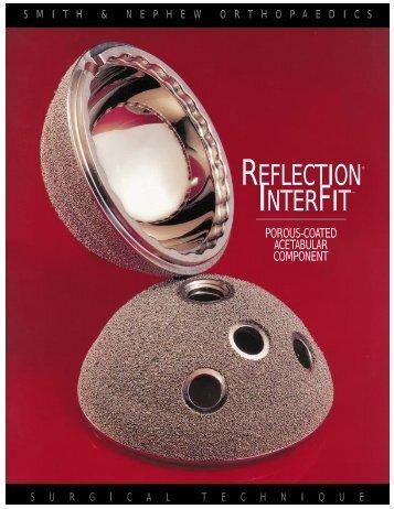 REFLECTION® INTERFIT™ - Bonerepmedical.com