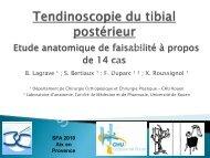 Tendinoscopie du tibial postérieur - Société française d'arthroscopie
