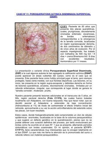POROQUERATOSIS ACTINICA DISEMINADA SUPERFICIAL