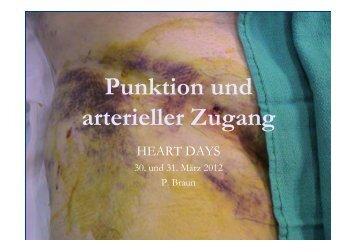 Punktion und arterieller Zugang - pci.info