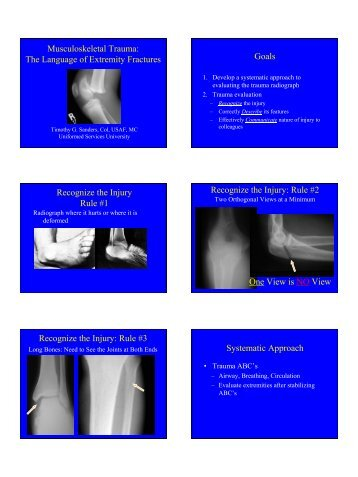 Musculoskeletal Trauma: The Language of Extremity Fractures ...