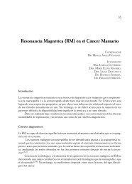 Resonancia Magnética (RM) en el Cáncer Mamario