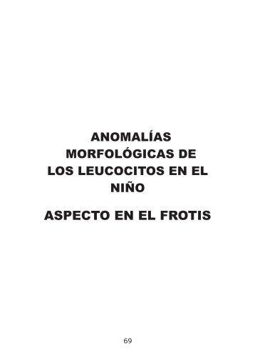 Anomalias-morfologicas-de-los-leucocitos-en-el-nino.-Aspecto-en-el-frotis-completo