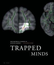 new anatomical evidence of bipolar disorder - Pitt Med - University ...