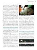 Diamant Mikrodermabrasion (DMDA) und Elektroporation (EP) - Seite 3
