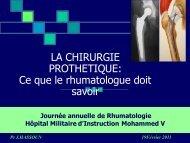 LA CHIRURGIE PROTHETIQUE: Ce que le ... - Rhumato.info