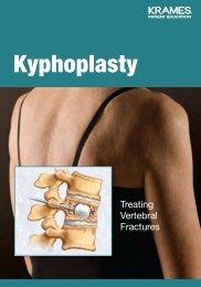 Kyphoplasty - Veterans Health Library