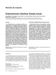 Endometriosis intestinal. Estado actual.