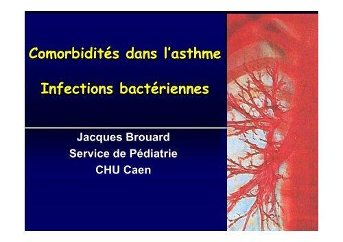 Comorbidités dans l'asthme - Infections bactériennes
