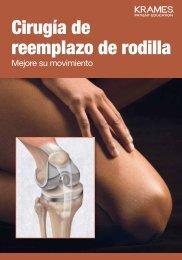 Cirugía de reemplazo de rodilla - Veterans Health Library