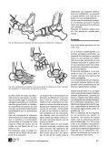 avances032004.pdf - Asepeyo - Page 6