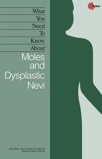 Moles and Dysplastic Nevi - HelpingYouCare