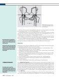 Hüftgelenk bei neuromuskulären Erkrankungen - Motio - Seite 4