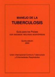 Cómo se diagnostica la tuberculosis?