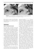 Chemodenervation of Extraocular Muscles— Botulinum Toxin - Page 3