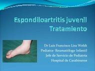 Espondiloartritis juveniles Tratamiento