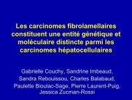 Les carcinomes fibrolamellaires constituent une entité ... - Afef