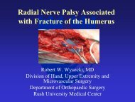 Radial Nerve Palsy Associated with Fracture of the Humerus