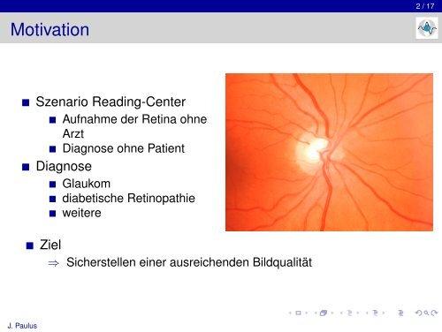 Automatische Qualitätsmessung von Retina-Fundusbildern