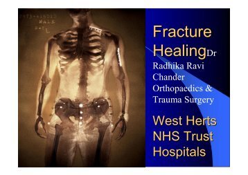 Fracture Healing & Factors - MOTEC LIFE-UK