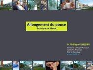 Allongement du pouce selon Matev - e-plastic.fr