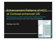 Padrões Realce CHC Ecografia Contraste - H.U.C.
