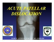ACUTE PATELLAR DISLOCATION