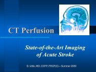 ASPECT Scoring of CT Perfusion in Early Stroke - Department of ...