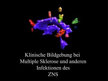 Bildgebung bei Multiple Sklerose - NeuroKopfZentrum