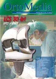 ny global skulderprotese - Ortomedic