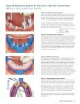 SwissPlus Manual Tapered Abutment System - Zimmer Dental - Page 5