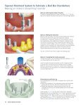 SwissPlus Manual Tapered Abutment System - Zimmer Dental - Page 6