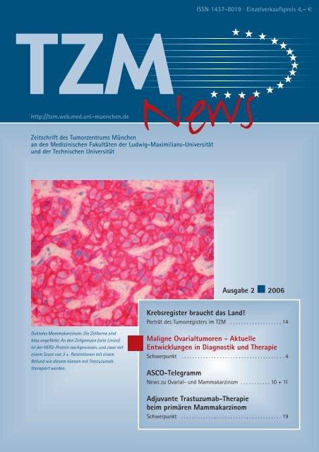 TZM News 02-2006 - Seite