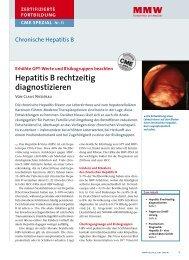 Diagnose von Hepatitis B und C - MTA-Schule Osnabrück