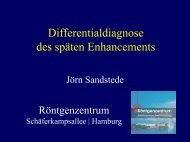 Differentialdiagnose des späten Enhancements