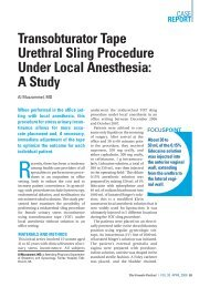 Transobturator Tape Urethral Sling Procedure Under Local Anesthesia