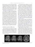 A review of diffusion tensor imaging studies in schizophrenia - Page 5