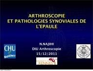 ARTHROSCOPIE ET PATHOLOGIES SYNOVIALES DE L'EPAULE